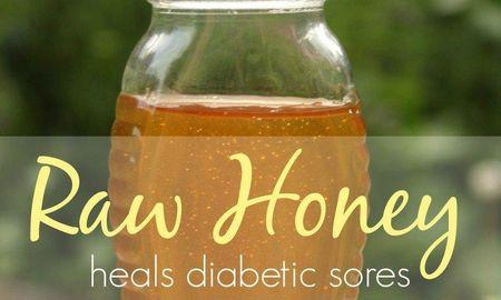 Can Manuka Honey Cure Diabetes
