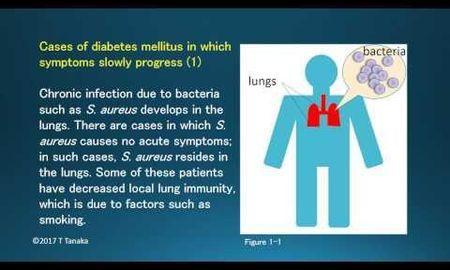 Hypothesis Of Diabetes Mellitus