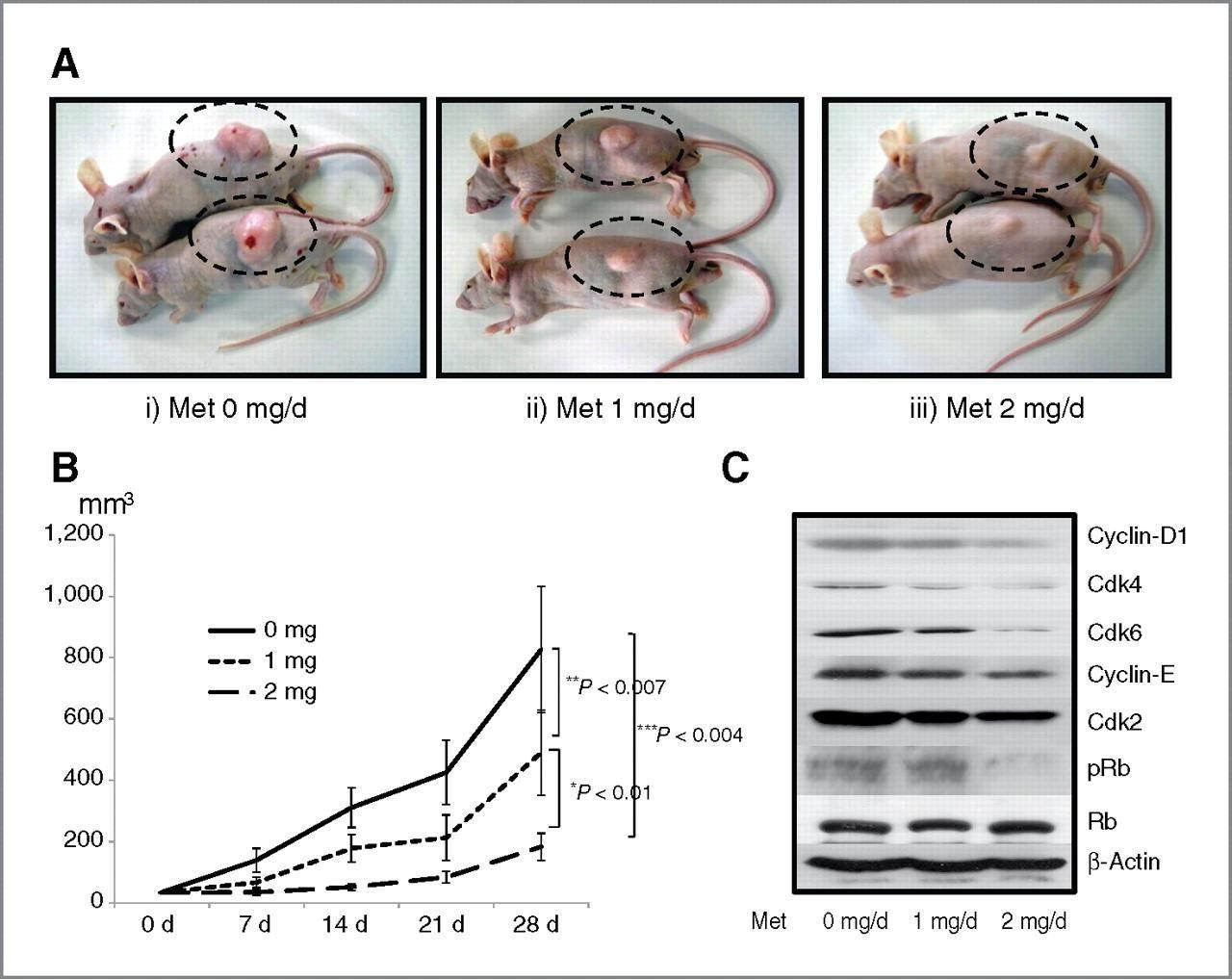 Metformin Lactic Acidosis Uptodate