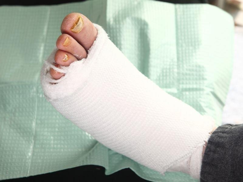 Offloading Boot For Diabetic Foot Ulcers
