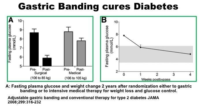 Can You Get Cured Of Diabetes?