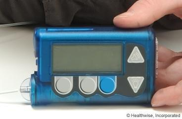 Learning About Insulin Pumps