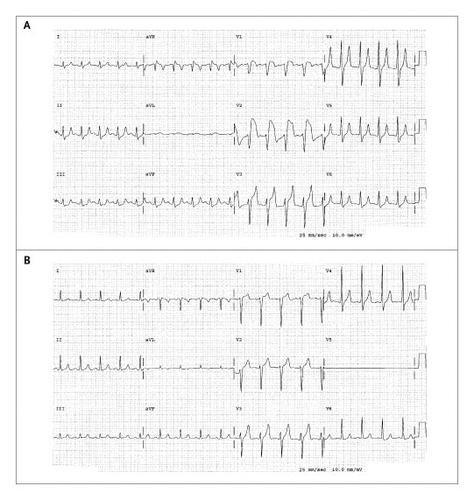 """pseudoinfarction"" Pattern Due To Hyperkalemia"