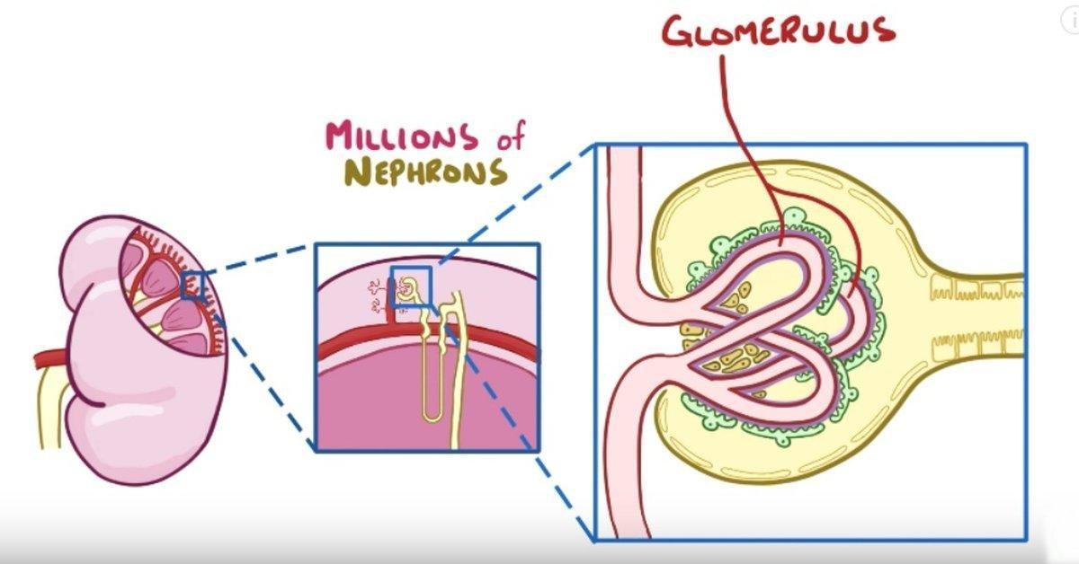 Diabetic Kidney Disease: The Animated Explanation