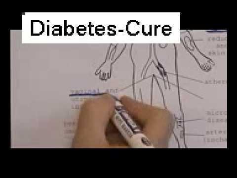 Long Term Complications Of Diabetes