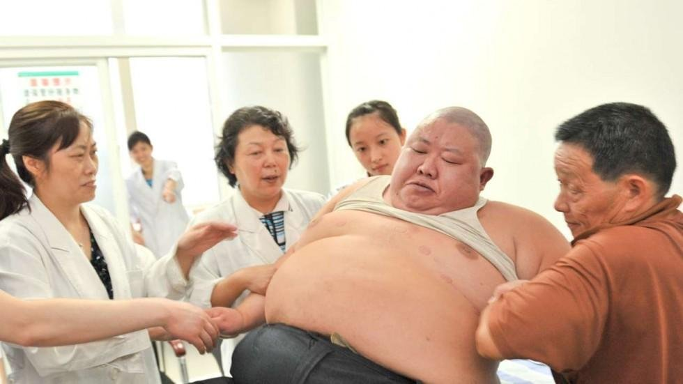 One in three of world's adults with diabetes is in China, WHO reports