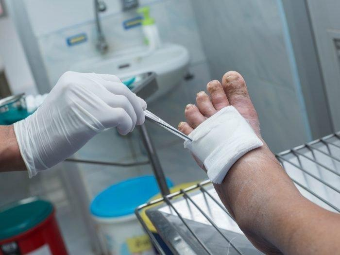 10 Effective Remedies For Diabetic Foot Infections