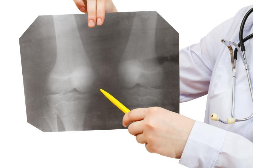 Osteoporosis and Diabetes: Pros and Cons to Antidiabetic Regimens