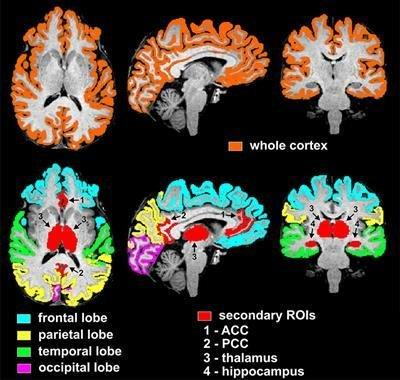 Frontiers | Type 1 Diabetes And Impaired Awareness Of Hypoglycemia Are Associated With Reduced Brain Gray Matter Volumes | Neuroscience
