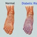 Diabetic Neuropathy Pictures