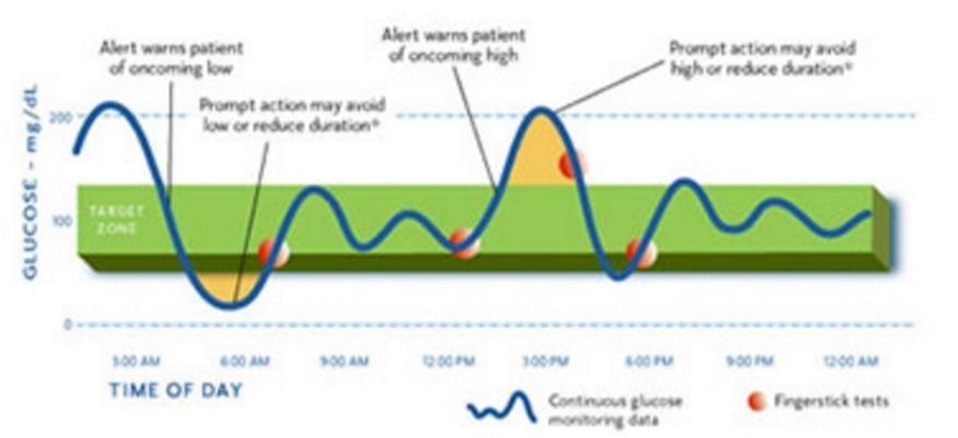 Continuous Glucose Monitor: Dexcom Vs Medtronic
