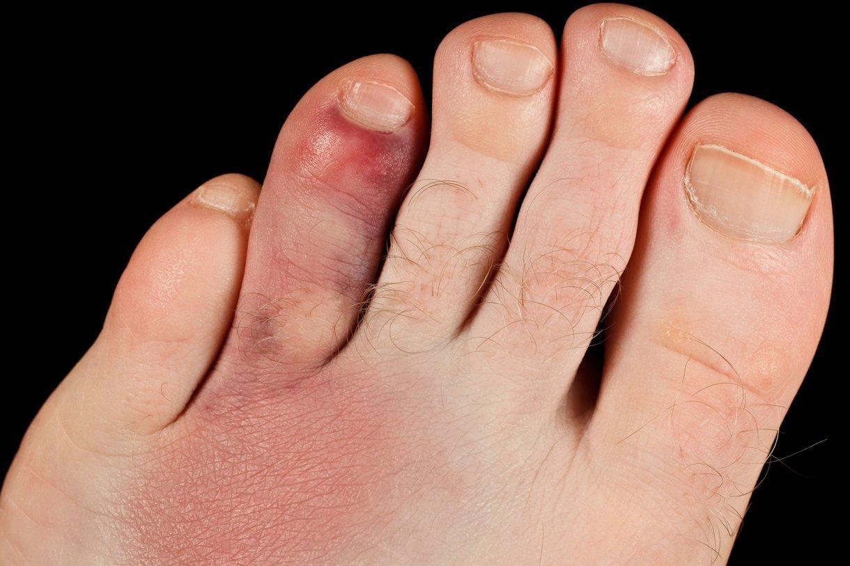 Bruised Toes Diabetes