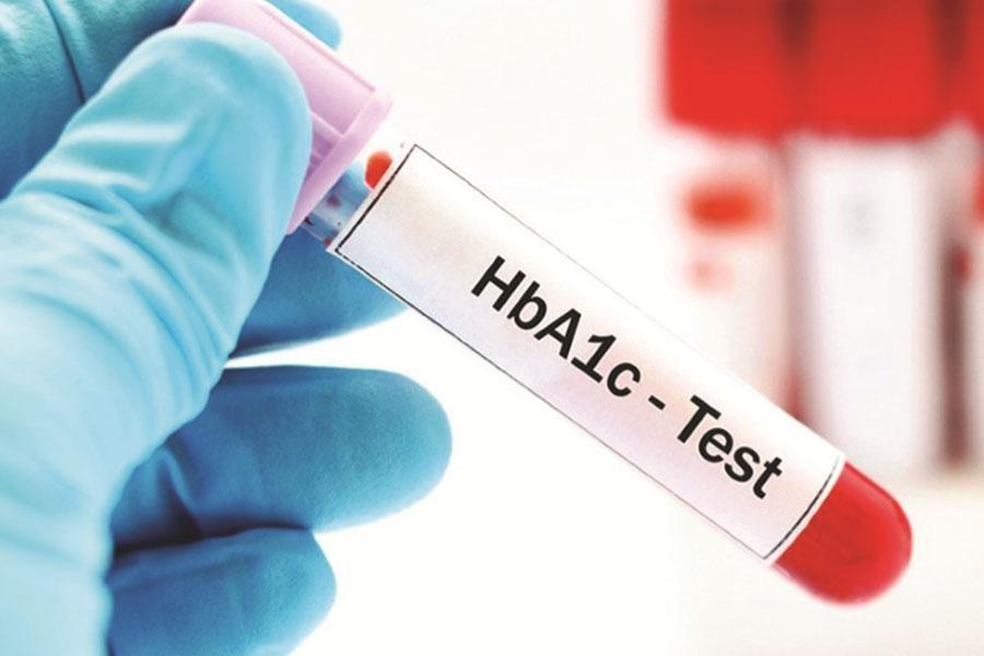 What is Hemoglobin A1c (HbA1c) Test for Diabetes?