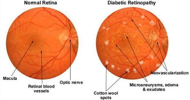 How Does Diabetes Affect the Eye and the Vision?