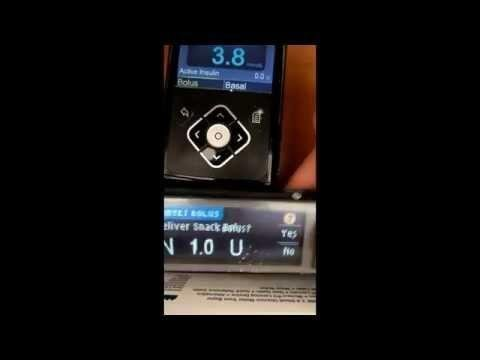 Remote Bolus Issues With Medtronic 640g