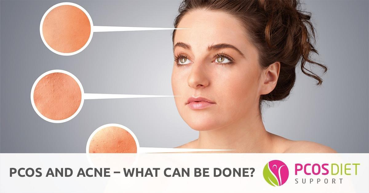 Pcos And Acne - What Can Be Done? | Pcos Diet Support