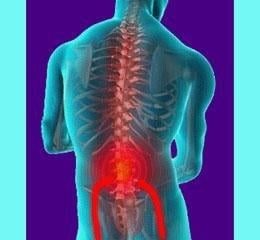 Diabetes Back Pain