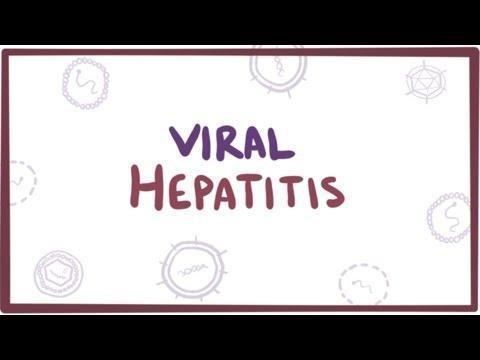Treatment Of Type 2 Diabetes Mellitus By Viral Eradication In Chronic Hepatitis C: Myth Or Reality? - Sciencedirect