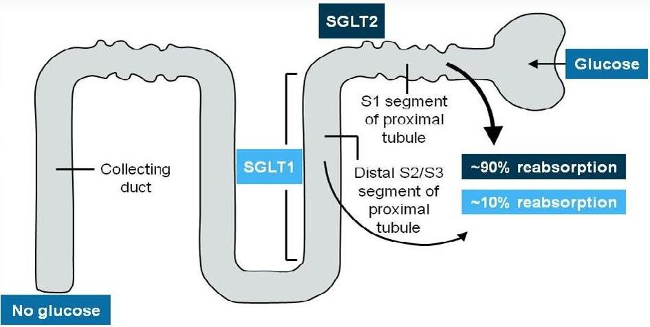Sglt2 Inhibitors: A New Class Of Diabetes Medications