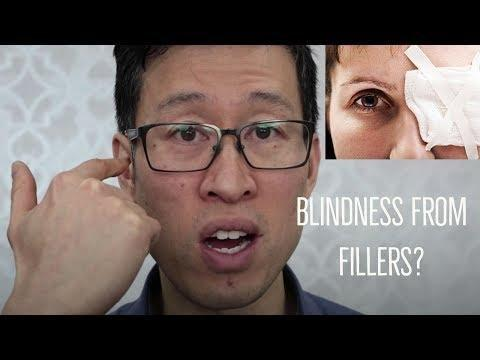 If You Have A Medical Disease Like Diabetes Or Other Problems, Is It Safe To Have Fillers Done?