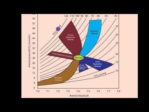 Acidosis And Alkalosis Chart