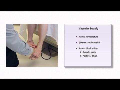 Diabetic Foot Exam Note