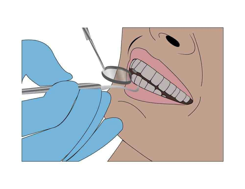 Do Diabetics Have Problems With Their Teeth?