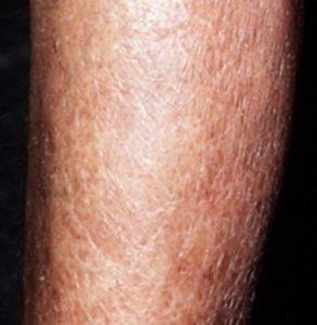 Diabetic Dry Skin Treatment Diabetestalk Net