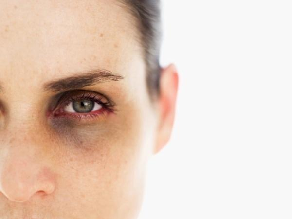 The Truth About Dark Circles: Causes And Links To Diseases - Indiatimes.com