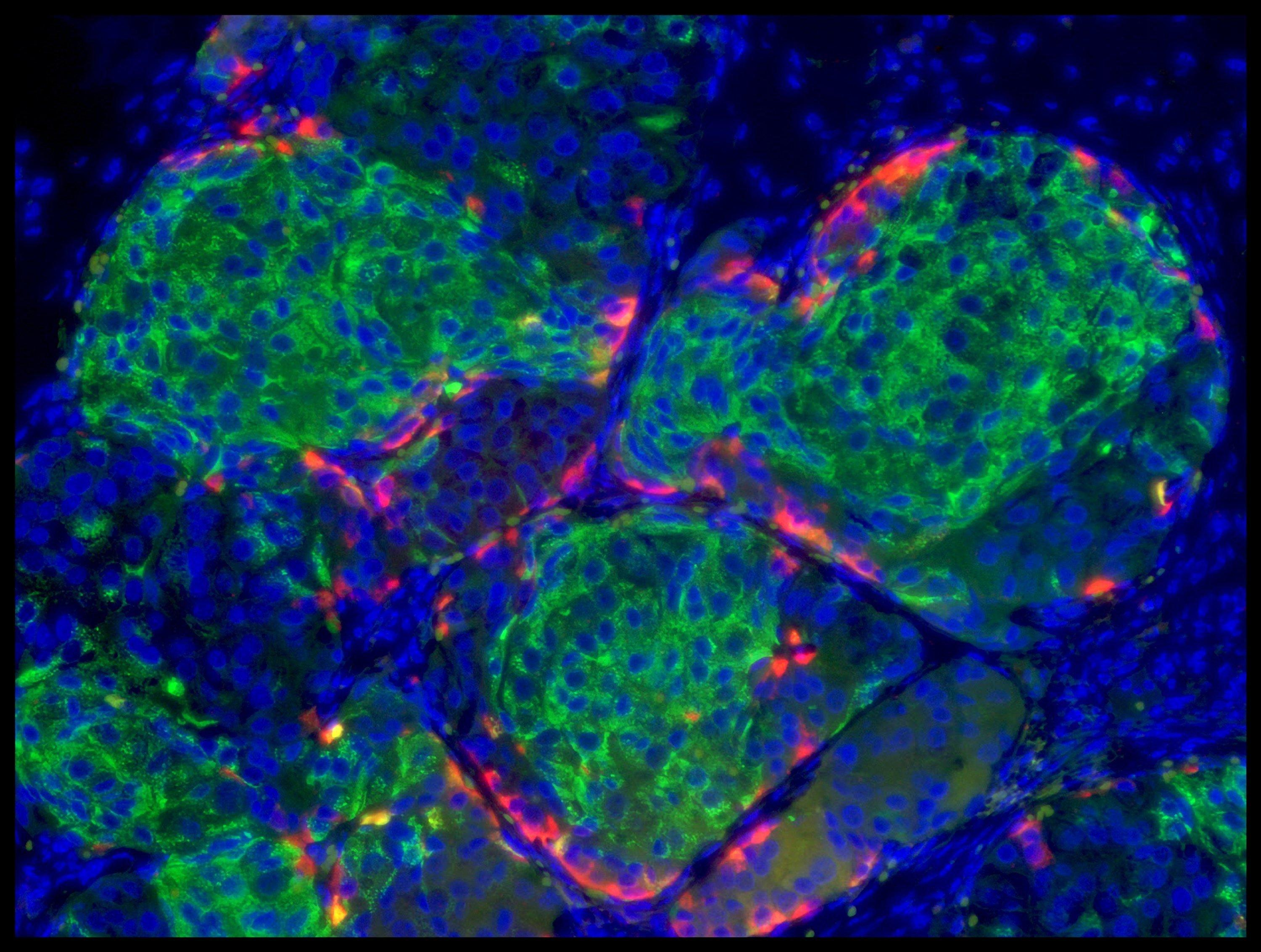 How Can Stem Cells Be Used To Treat Type 1 Diabetes