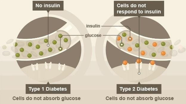 Can A Type 2 Diabetes Turn Into A Type 1?