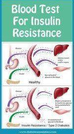 Insulin Resistance Test Normal Range