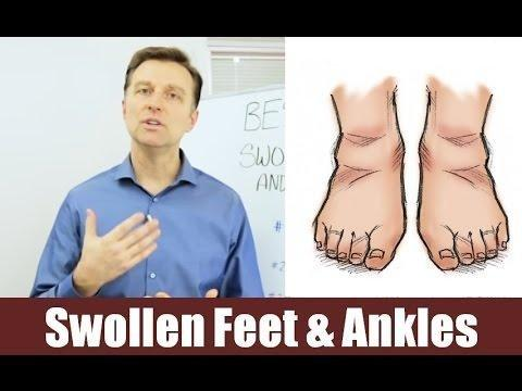 Can Metformin Cause Ankle And Feet Swelling