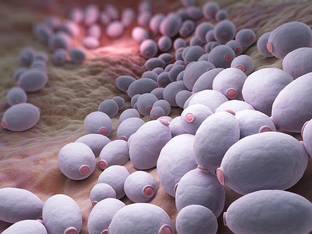 Diabetic Yeast Infection Rash Pictures