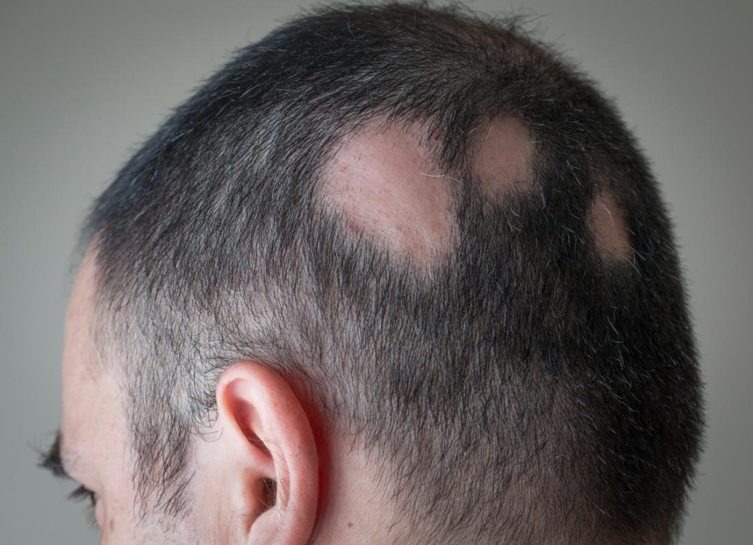 Alopecia Areata: Symptoms, Treatment, And Tips