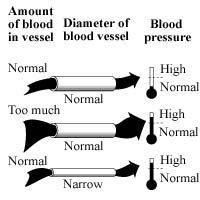 How Does Diabetes And Hypertension Cause Renal Failure?