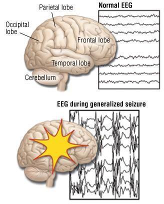 Can Diabetic Seizures Cause Brain Damage?