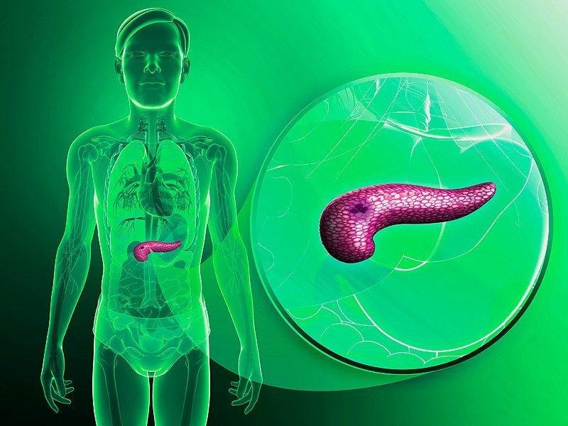 Chasing Diabetes' Connection To Pancreatic Cancer