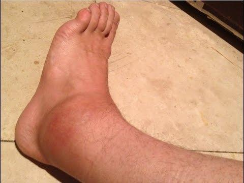 Ankle Pain In The Diabetic Patient – Is It Just A Sprain?