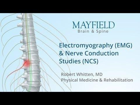 Electromyography (emg) And Nerve Conduction Studies (ncs) For Neuropathy Diagnosis