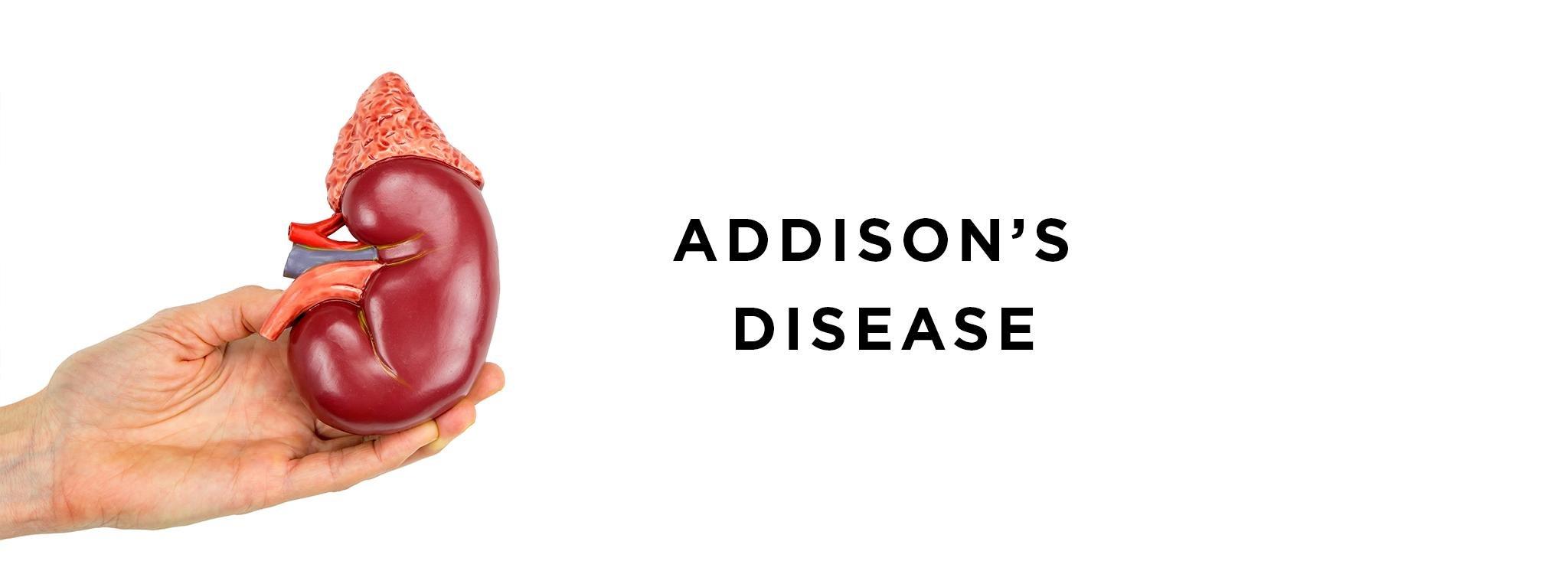 Addison's Disease With Type 1 Diabetes: Schmidt Syndrome