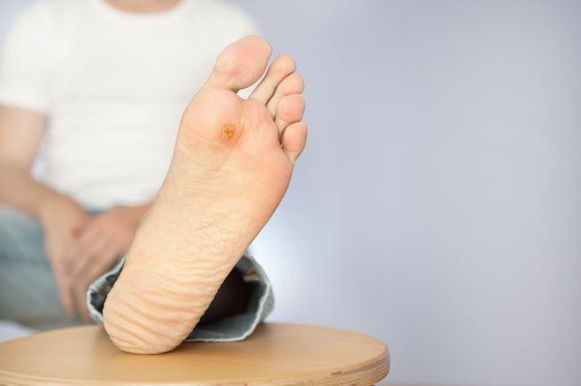 Diabetic Foot Pictures