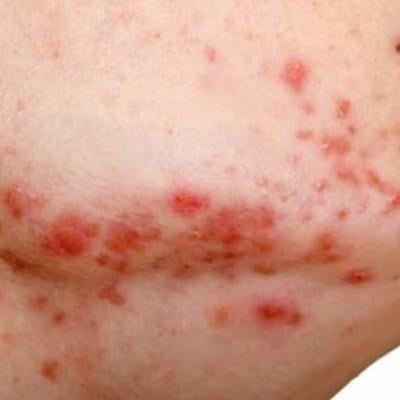 Insulin Resistance In 22% Of Men With Acne