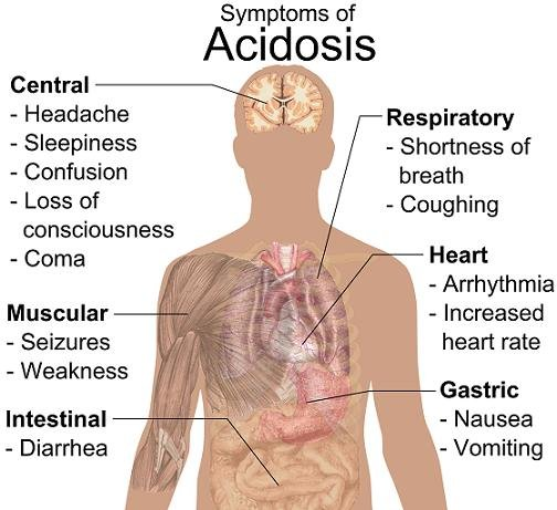 Lactic Acidosis Treatment At Home
