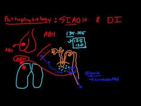 Central Diabetes Insipidus Vs Nephrogenic Diabetes Insipidus