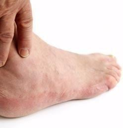 Why Do Your Feet Swell When You Have Diabetes