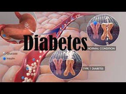 Which Symptom Is Common To Gestational Type 1 And Type 2 Diabetes