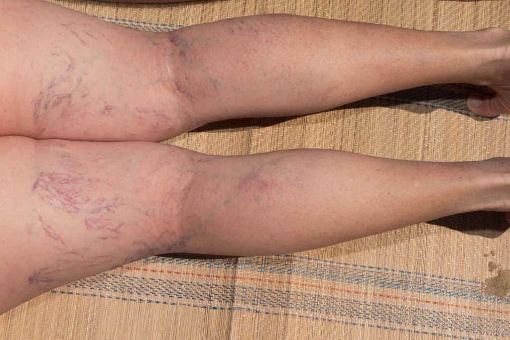 How Does Diabetes Affect The Veins?
