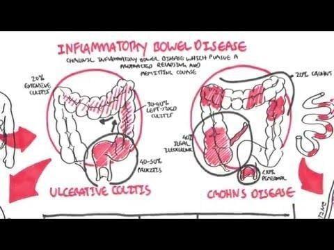 Type 1 Diabetes And Crohn's Disease Genes Identified