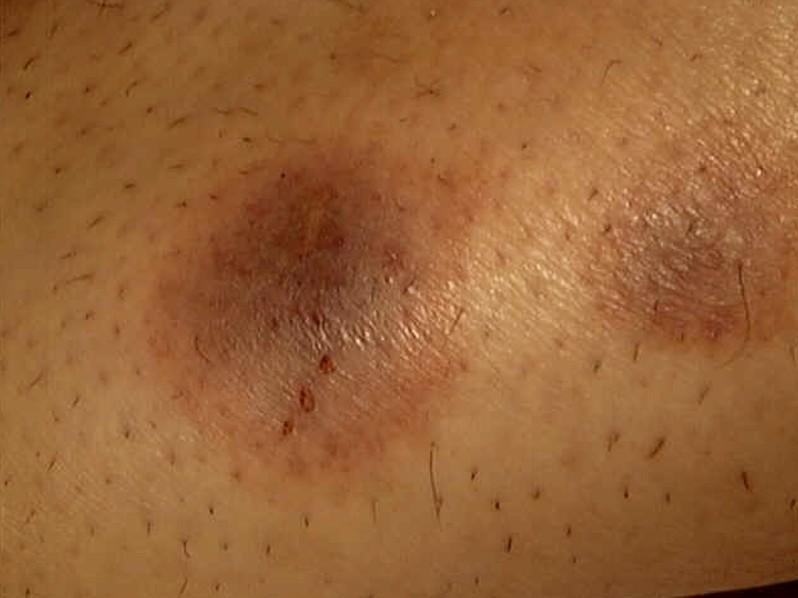 Diabetic Rash On Legs Pictures